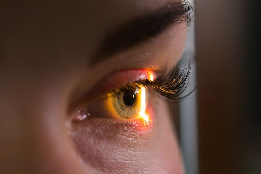 O que é o melanoma ocular?